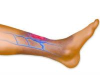 Воспаление вен на ноге