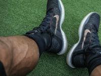 Варикоз на ногах у мужчины