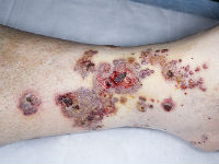 Сыпь на ногах при геморрагическом васкулите