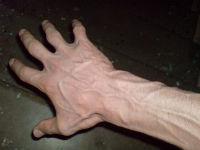 Вены на руках