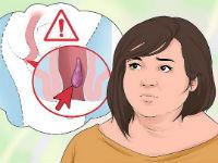 Геморрой у женщин