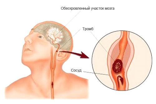 механизм протекания инсульта