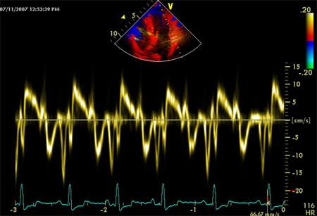 допплерэхокардиография