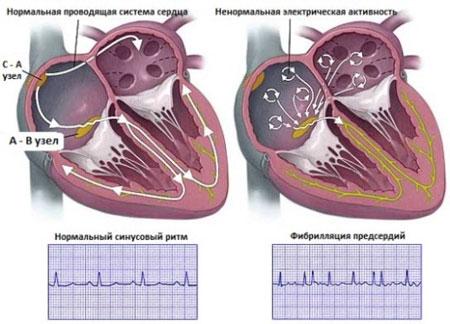 нарушение работы сердца при аритмии