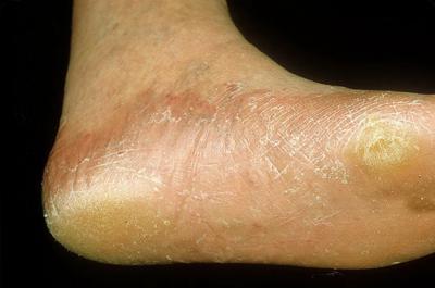 Трофические расстройства кожи стопы