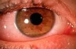 Гипотоническая ангиопатия сетчатки