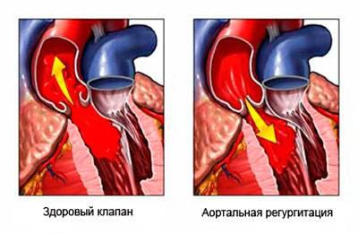 аортальная недостаточность