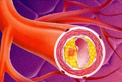 Атероматоз аорты что это такое
