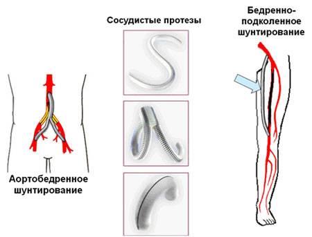 Атеросклероз бедренной артерии лечение thumbnail