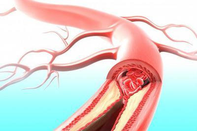 Холестериновая бляшка внутри артерии