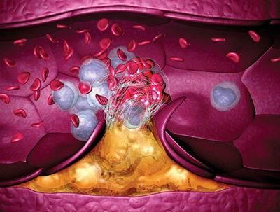 диеты для чистки сосудов головного мозга