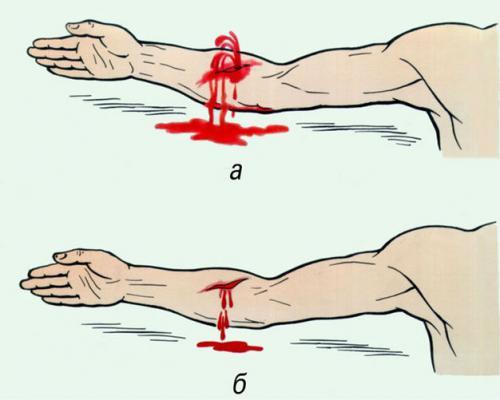 артериальное и венозное кровотечения