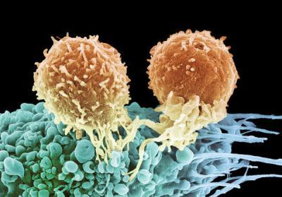 Лимфоцитарные клетки