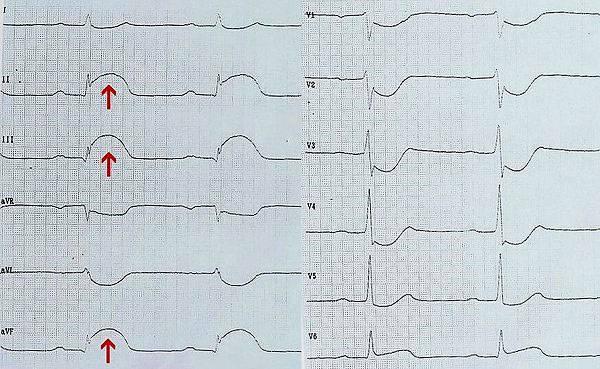 ЭКГ при инфаркте