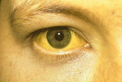 Желтуха у человека с гипербилирубинемией