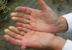 бледность пальцев