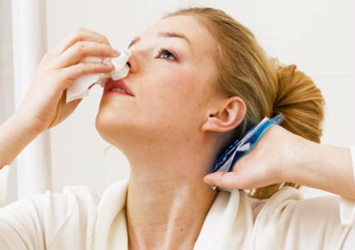носовое кровотечение при тромбоцитопении