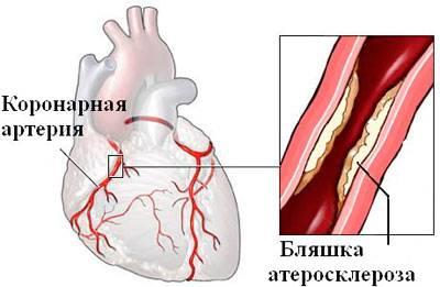 Что такое стенокардия напряжения