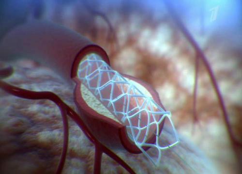 стент внутри сосуда
