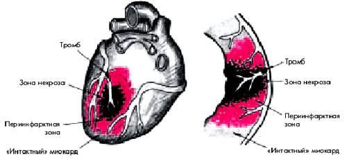 Периинфарктная зона при трансмуральном инфаркте