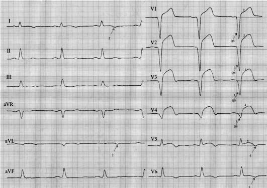Трансмуральный инфаркт миокарда на ЭКГ