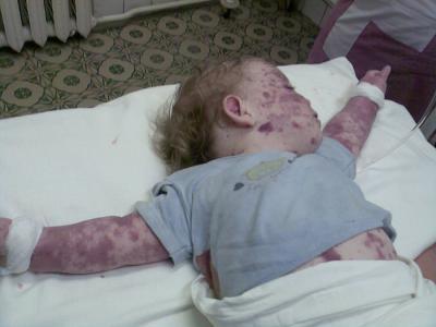 Тромбоцитопеническая пурпура с кожными проявлениями