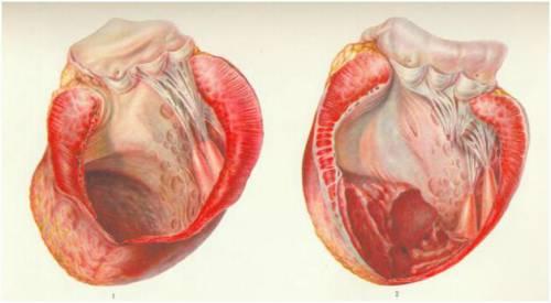 Нормальное сердце и пораженное аневризмой