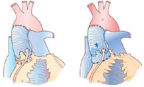 Операция при аортальной недостаточности