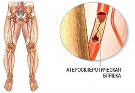 Атеросклероз коронарных артерий аускультация thumbnail
