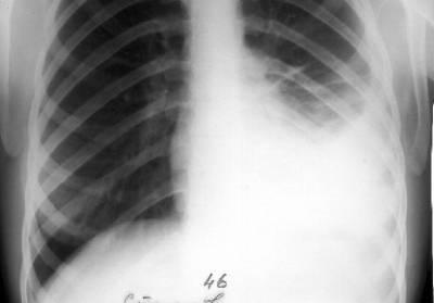 Левосторонний плеврит на рентгенограмме