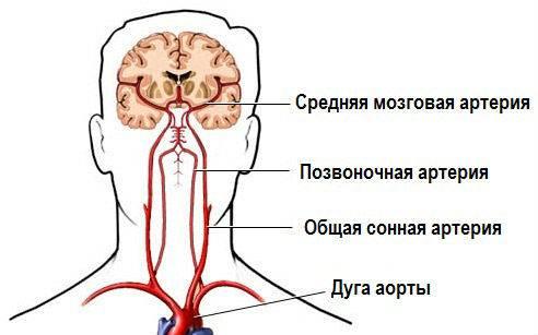 Схема путей кровоснабжения мозга