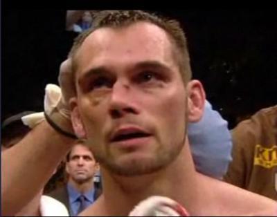 Перелом носа у боксера