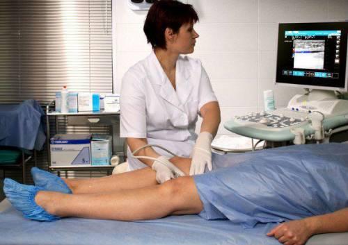 Как принимать детралекс при варикозе