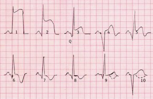ЭКГ быть инфаркте миокарда