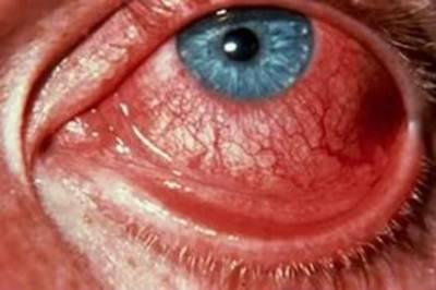 Склеры пациента с эритремией