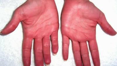 Красные ладони при эритремии