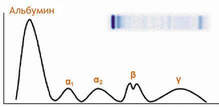 Протеинограмма