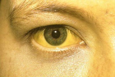 Глаза при желтухе