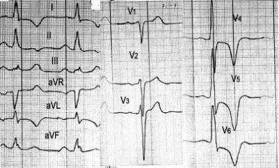 ЭКГ при гипертрофии левого желудочка