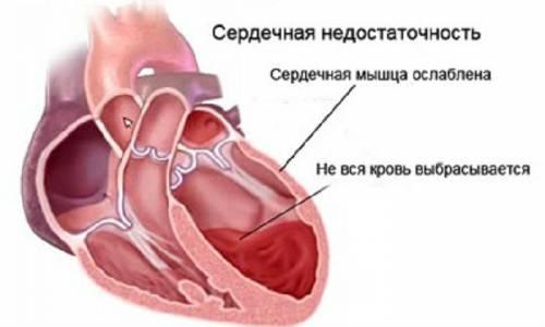 Кашель при сердечной недостаточности симптомы лечение