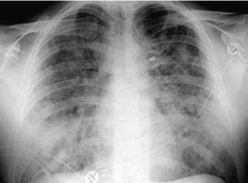 Рентгенограмма при отеке легких