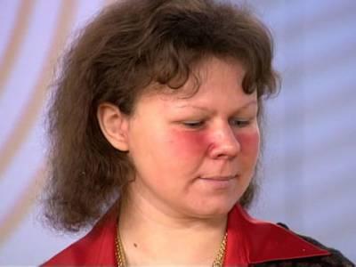 Румянец на лице при митральном стенозе у женщины