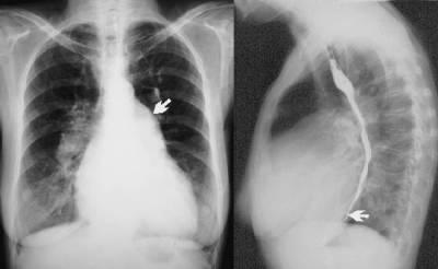 Рентгенограмма при митральном стенозе