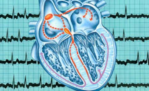 Сбился ритм сердца причины признаки и лечение