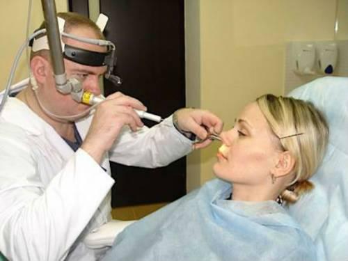 Эндоскопия носовой полости