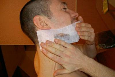 Порез лица от бритвы у мужчины