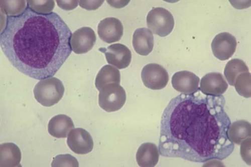 Моноциты в мазке крови