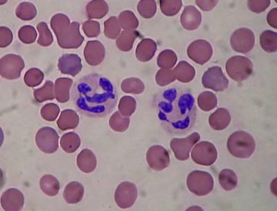 Сегментоядерные нейтрофилы в мазке крови