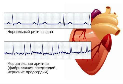 Какие бывают заболевания сердца
