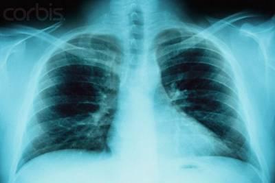 Рентгенография органов грудной клетки